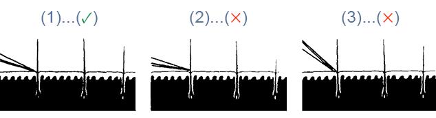 položaj rezila britve